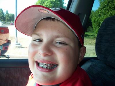 4-23 braces 2